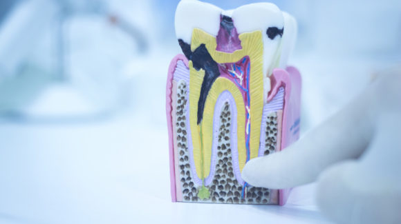 Los implantes dentales